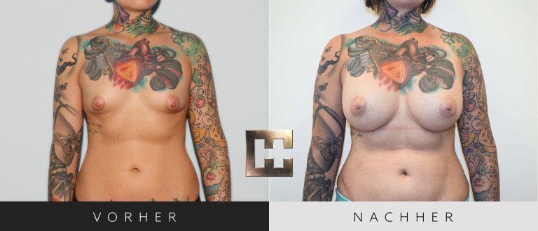 Pjure Breast Composite Vorher Nachher 201 Bild #1