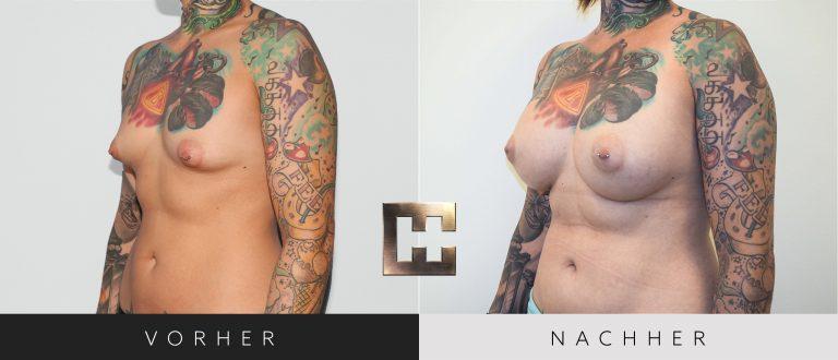 Pjure Breast Composite Vorher Nachher 201 Bild #2