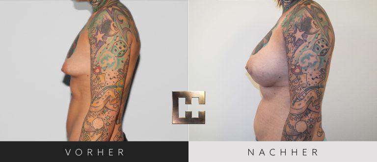 Pjure Breast Composite Vorher Nachher 201 Bild #3