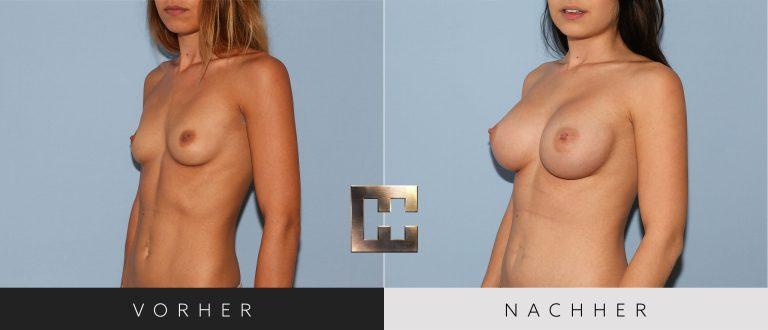 Brustvergrößerung Vorher Nachher 205 Bild #2