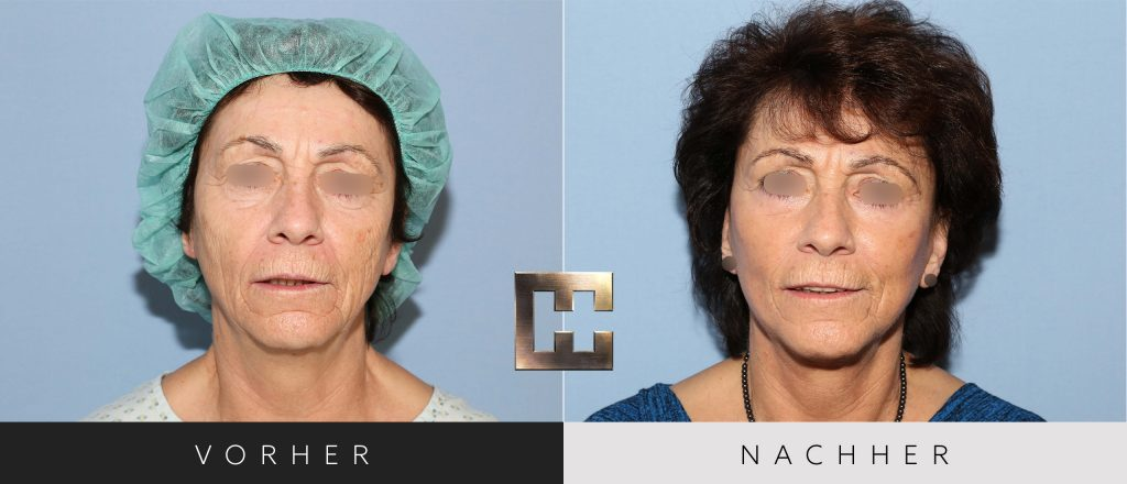 Facelift Vorher Nachher Bilder Patient 206