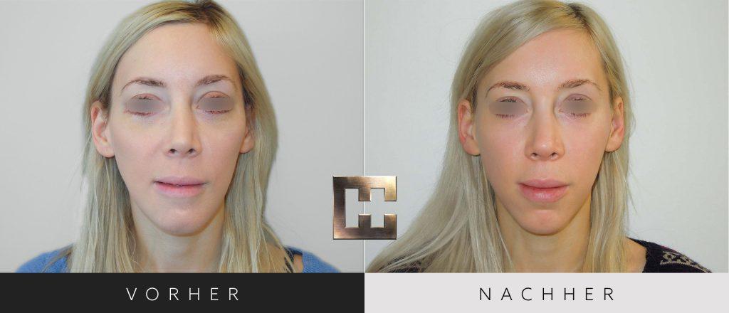 Gesichtsimplantate Vorher Nachher Bilder Patient 207