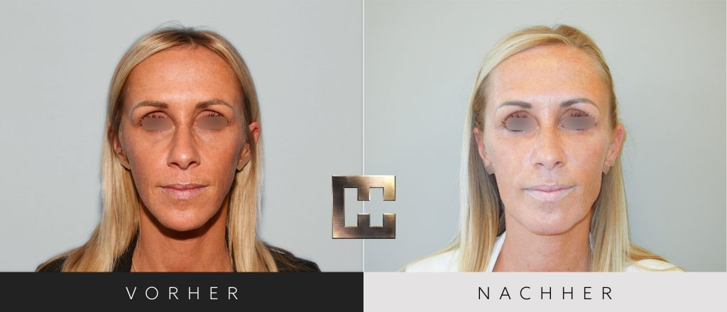 Gesichtsimplantate Vorher Nachher Bilder Patient 208