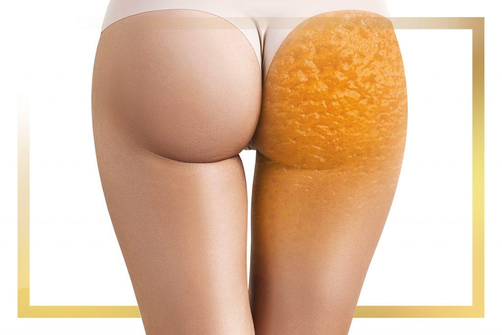 Cellulite: Die wirksamsten Methoden zur Bekämpfung von Orangenhaut