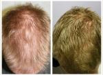 Eigenblutplasma Haarausfall
