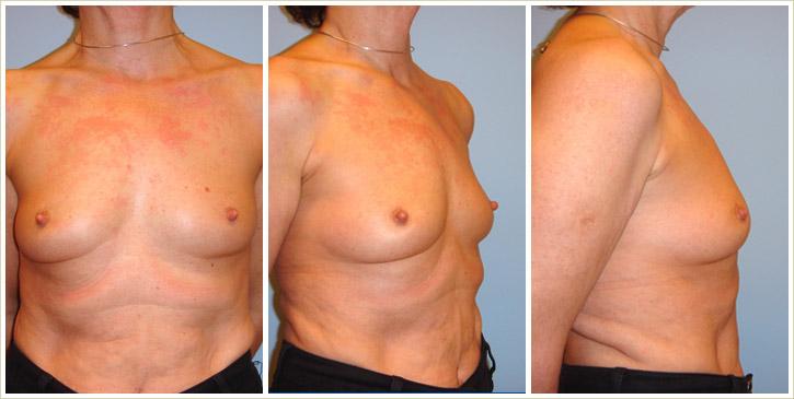 Die Kliniken auf der Erhöhung der Brust in karagande