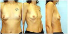 Brustvergrößerung Brust vergrößern