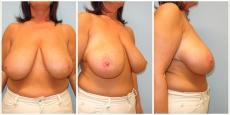 Brustverkleinerung Brust verkleinern