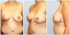 Brustwiederherstellung Linz