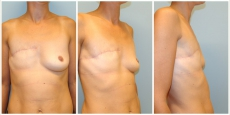 Brustwiederherstellung