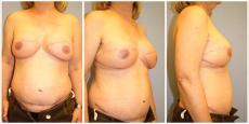 Brustwiederherstellung Wels