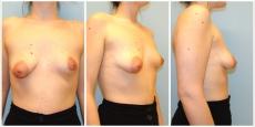 Brustkorrektur tubuläre Brustdeformität Linz