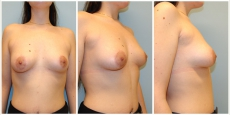 Brustkorrektur tubuläre Brustdeformität Wels