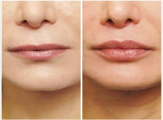 Lippenformung