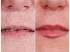 Lippenformung, Lippenkorrektur
