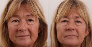 Vorher und Nachher nach Behandlung von Falten und Hauterschlaffung im Gesicht durch Exilis Elite
