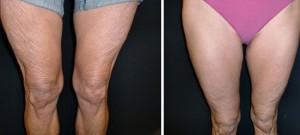 Exilis Elite vor und nach einer Behandlung von erschlafften Oberschenkeln/Knien